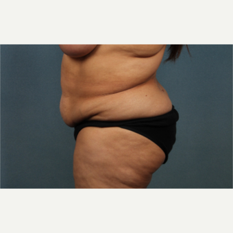 55-64 year old woman treated with Tummy Tuck before 3259829