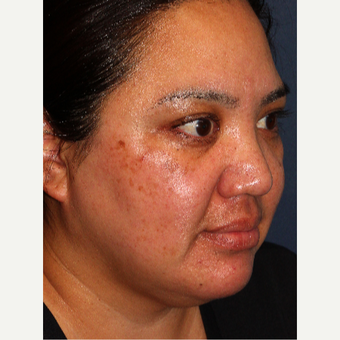 25-34 year old woman treated with Laser Treatment before 3220105