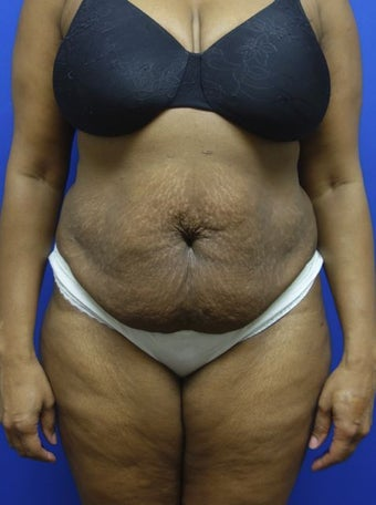 Tummy Tuck before 1369094