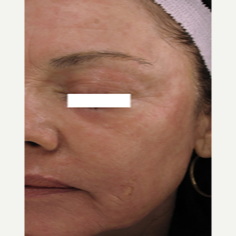 65-74 year old woman treated with ProFractional Laser after 3447528