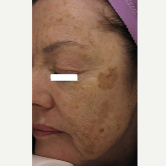 65-74 year old woman treated with ProFractional Laser before 3447528