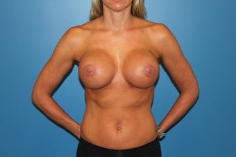 Breast Implant Revision after 347320