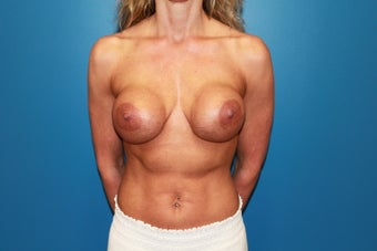 Breast Implant Revision before 347320
