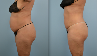 Liposuction before 379685