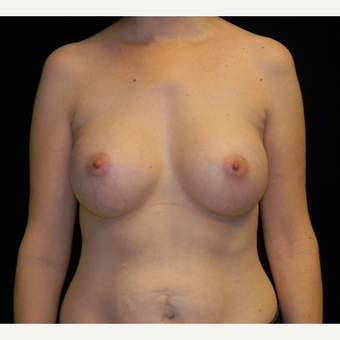 35-44 year old woman treated with Breast Augmentation with Ideal Implant after 3809005