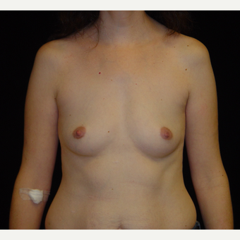 35-44 year old woman treated with Breast Augmentation with Ideal Implant before 3809005