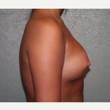 25-34 year old woman treated with Breast Implants after 3303918