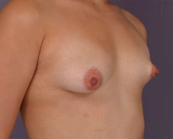 Breast Asymmetry Correction before 281322