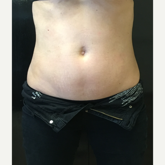 25-34 year old woman treated with CoolSculpting before 3071491