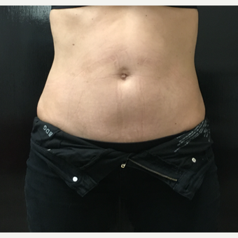 25-34 year old woman treated with CoolSculpting after 3071491