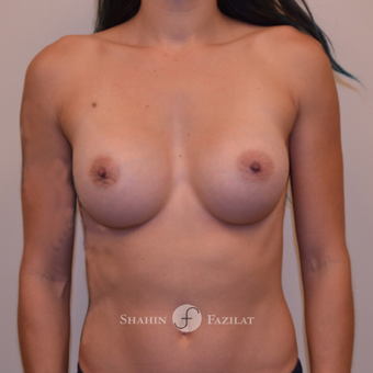 25-34 year old woman treated with Breast Augmentation after 3702588