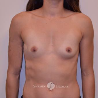 25-34 year old woman treated with Breast Augmentation before 3702588