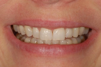 This patient's missing left lateral incisor was repalced with dental implant.