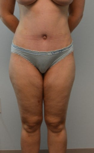 35-44 year old woman treated with Tummy Tuck after 3408332