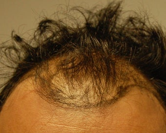 New York City Hair Transplant.  37 Year Old Male. before 932330