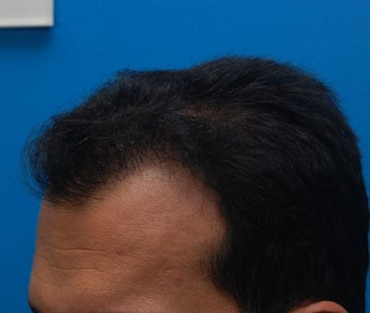 New York City Hair Transplant.  37 Year Old Male. 932330
