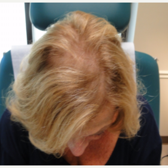 65-74 year old woman treated with PRP for Hair Loss after 3517819