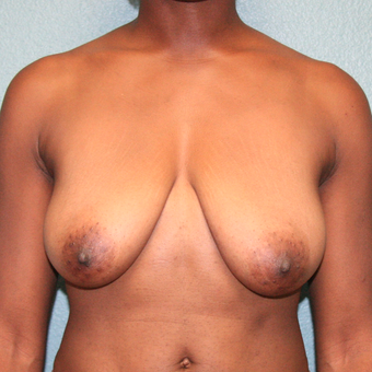 35-44 year old woman treated with Breast Lift before 3243449