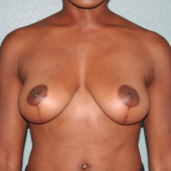 35-44 year old woman treated with Breast Lift after 3243449