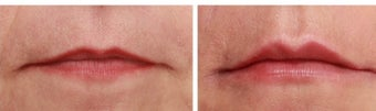 Lip enhancement with hyaluronic acid gel (Juvederm) before 1088291