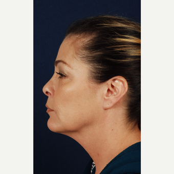 45-54 year old woman treated with Facelift before 3339958