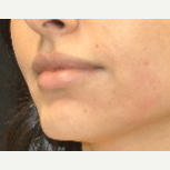 25-34 year old woman treated with Laser Treatment after 3285932