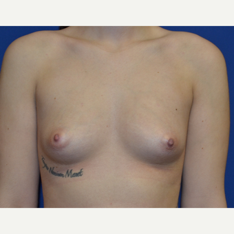 25-34 year old woman treated with Breast Augmentation before 3019470