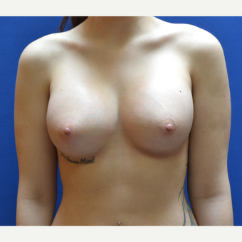 25-34 year old woman treated with Breast Augmentation after 3019470