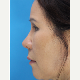 55-64 year old woman treated with Asian Rhinoplasty after 3507086