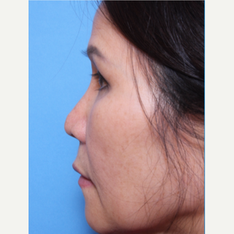 55-64 year old woman treated with Asian Rhinoplasty before 3507086