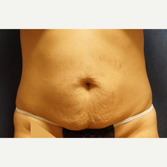 25-34 year old woman treated with Body Lift before 3071729