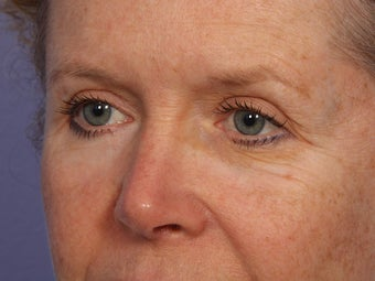Eyelid Surgery after 280837
