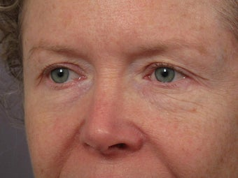 Eyelid Surgery before 280837