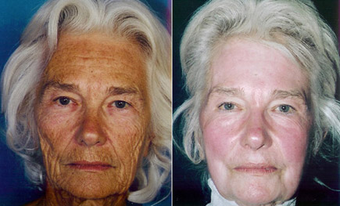 Chemical Peel before 1429290