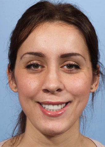 Orthognathic Jaw Surgery after 986460