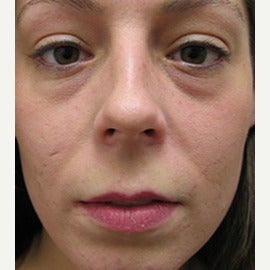 Woman treated with Botox before 1686459