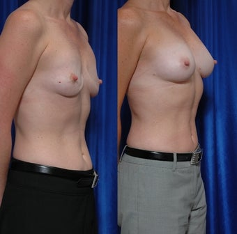 Breast implant removal and fat grafting before 131957