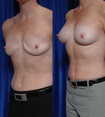 Breast implant removal and fat grafting after 131957