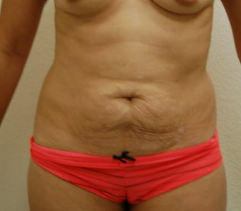 35-44 year old woman treated with Tummy Tuck before 3310915