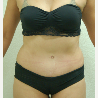 35-44 year old woman treated with Tummy Tuck after 3310915