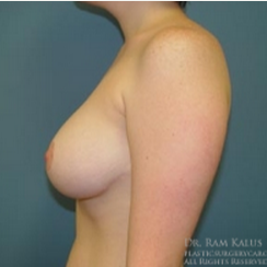 18-24 year old woman treated with Breast Reduction