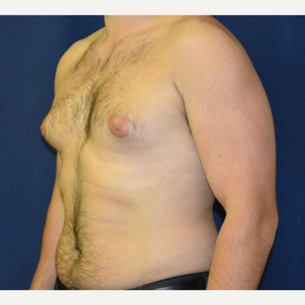 25-34 year old man treated with Male Breast Reduction before 3787084