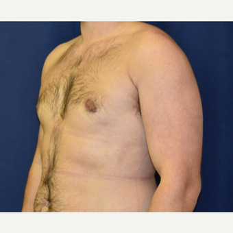 25-34 year old man treated with Male Breast Reduction after 3787084