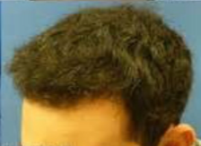 25-34 year old man treated with Hair Transplant after 3222733