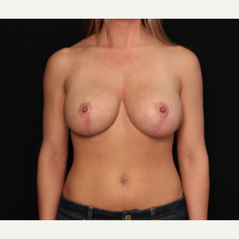 31 year old female with bilateral breast lift after 3575967
