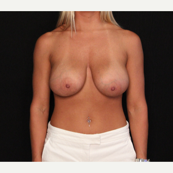 31 year old female with bilateral breast lift before 3575967