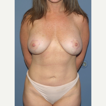 35-44 year old woman treated with Breast Lift with Implants after 3512714