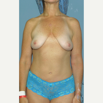 35-44 year old woman treated with Breast Lift with Implants before 3512714