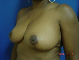 Breast Reduction 1372557