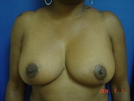 Breast Reduction after 1372557